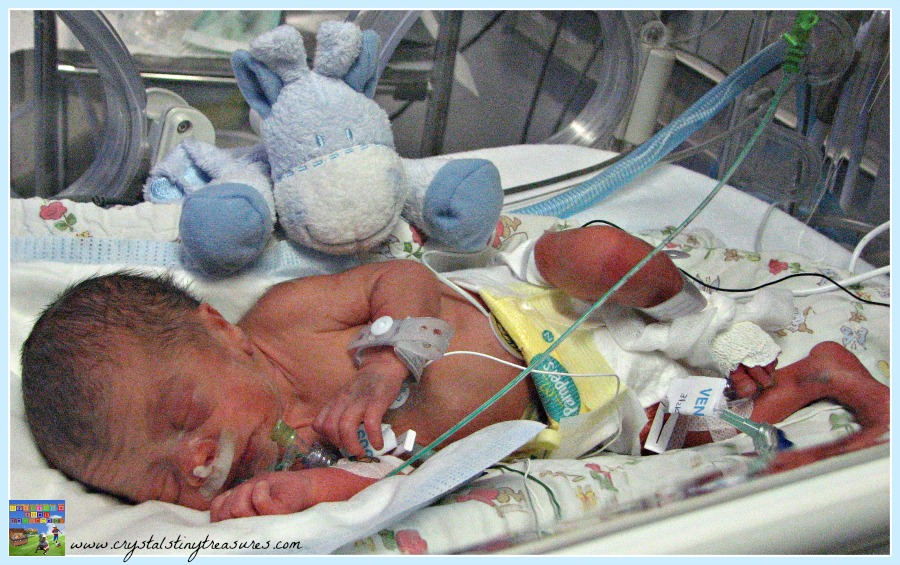Premature babies, Neonatal life, birth stories, photo