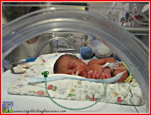 Two days old in the neonatal ward, extremely premature baby, photo